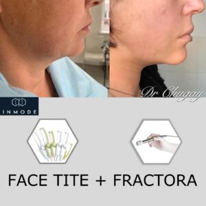 Face Tite + Fractora